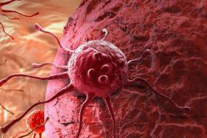 Công nghệ ADN Chẩn đoán ung thư chính xác