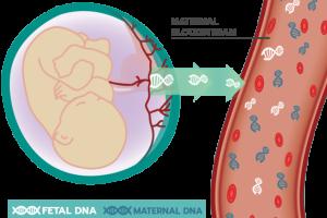 Kết quả NIPT sai có thể là dấu hiệu bệnh ác tính ở mẹ