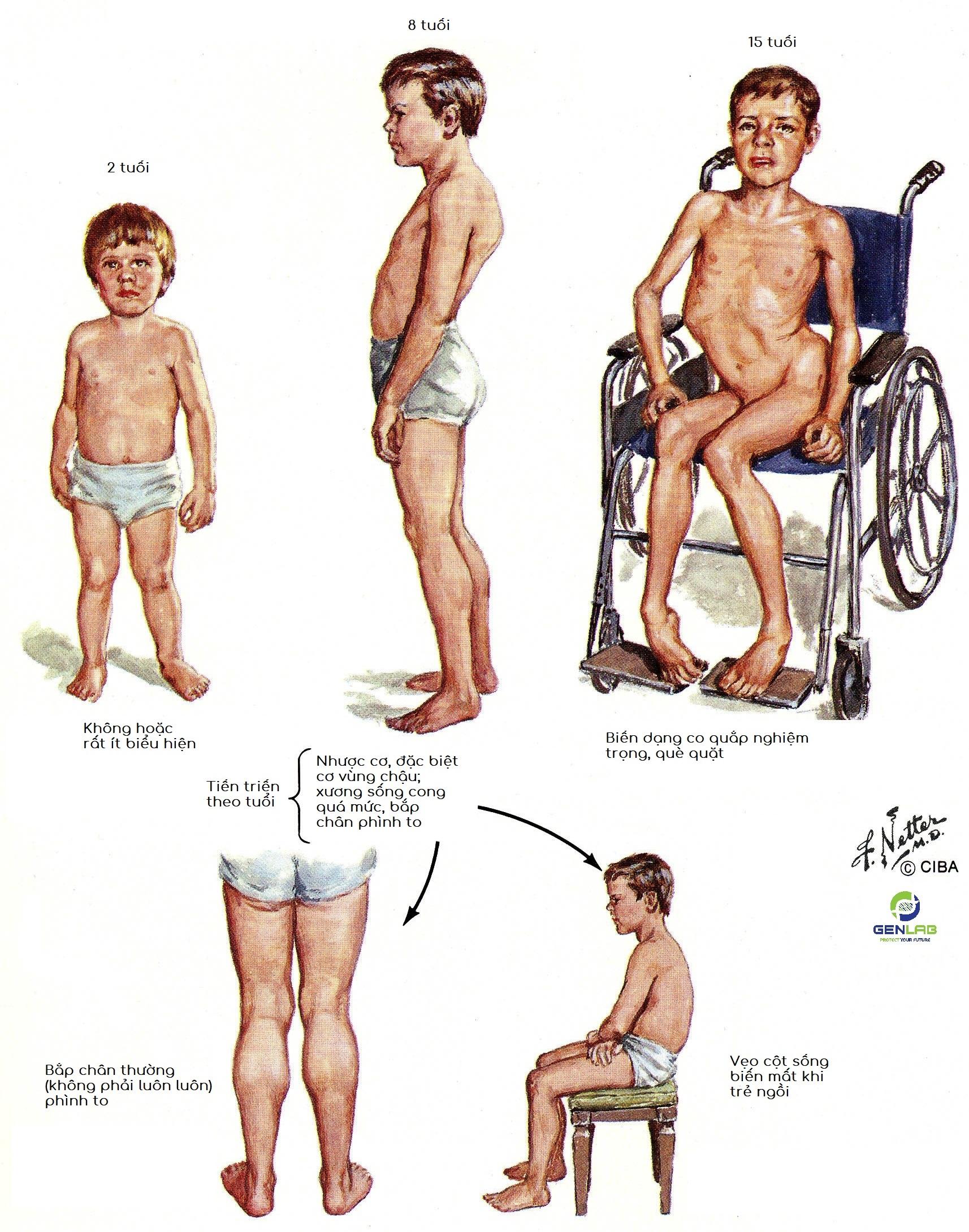 loạn dưỡng cơ Duchenne, loạn dưỡng cơ, bệnh DMD là gì, Duchenne Muscular Dystrophin là gì, hậu quả của bệnh loạn dưỡng cơ
