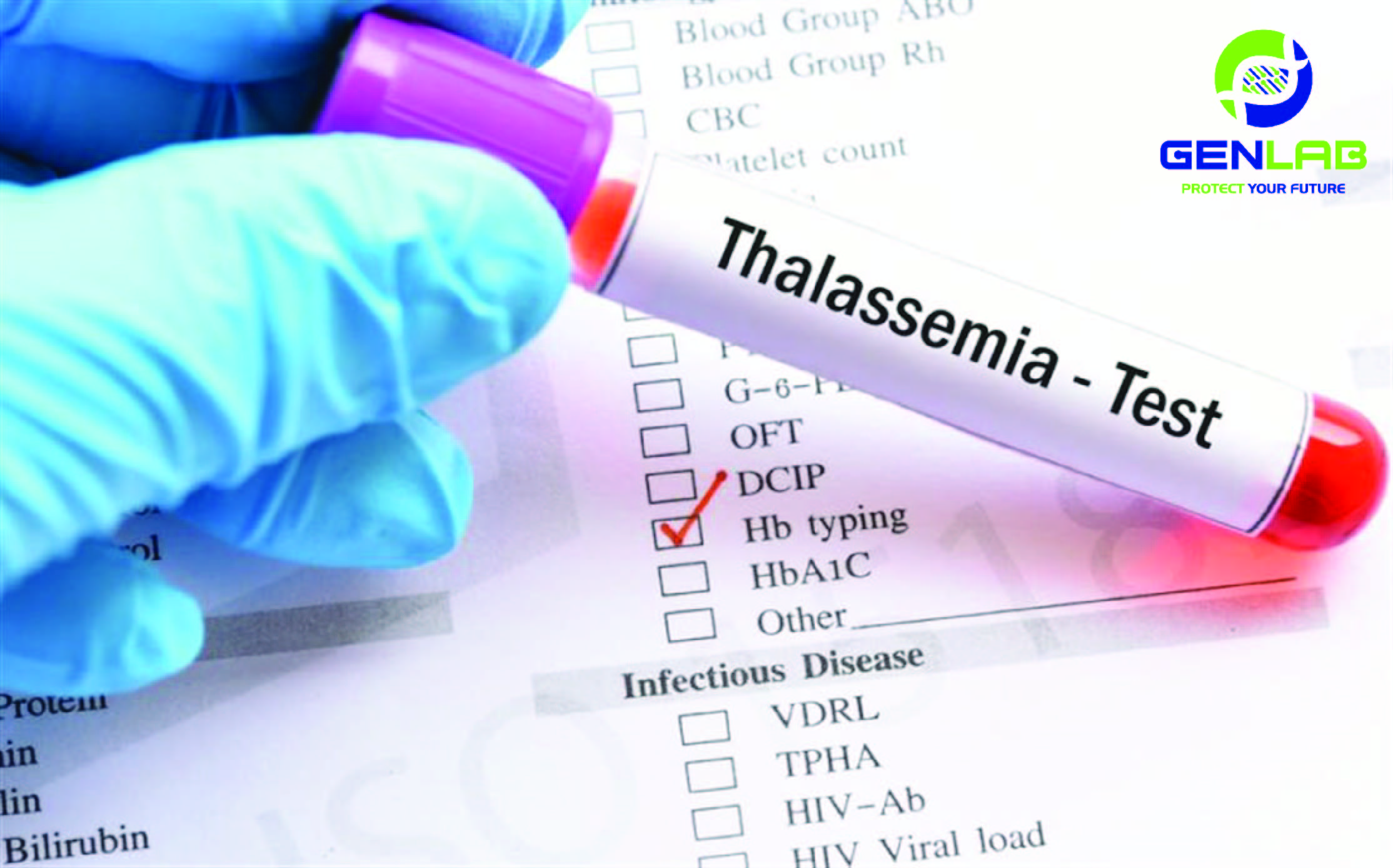 Dịch Vụ xét nghiệm tan máu bẩm sinh – Thalassemia tại Genlab – SĐT: 0968 589 489
