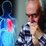 Ung thư phổi, những điều cần lưu ý