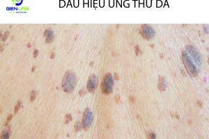 Ung thư da, Những nguyên nhân và dấu hiệu có thể nhìn chẩn đoán bệnh này